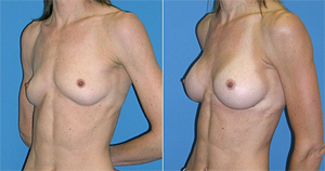 breast enlargement and breast augmentation dallas