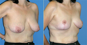 breast lift and  breast augmentation dallas